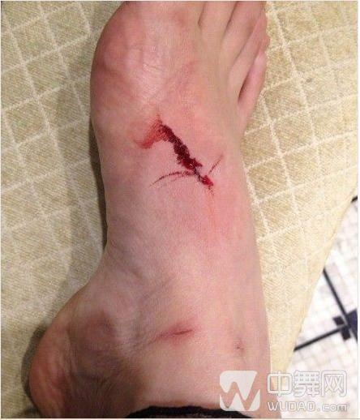 脚受伤后的感悟 跑步脚受伤住院的感想作文