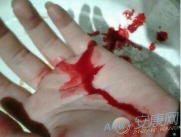 描写重伤满身血的句子